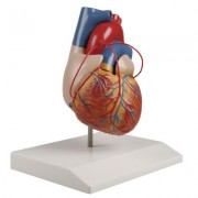 Herzmodell mit Bypassgefäßen